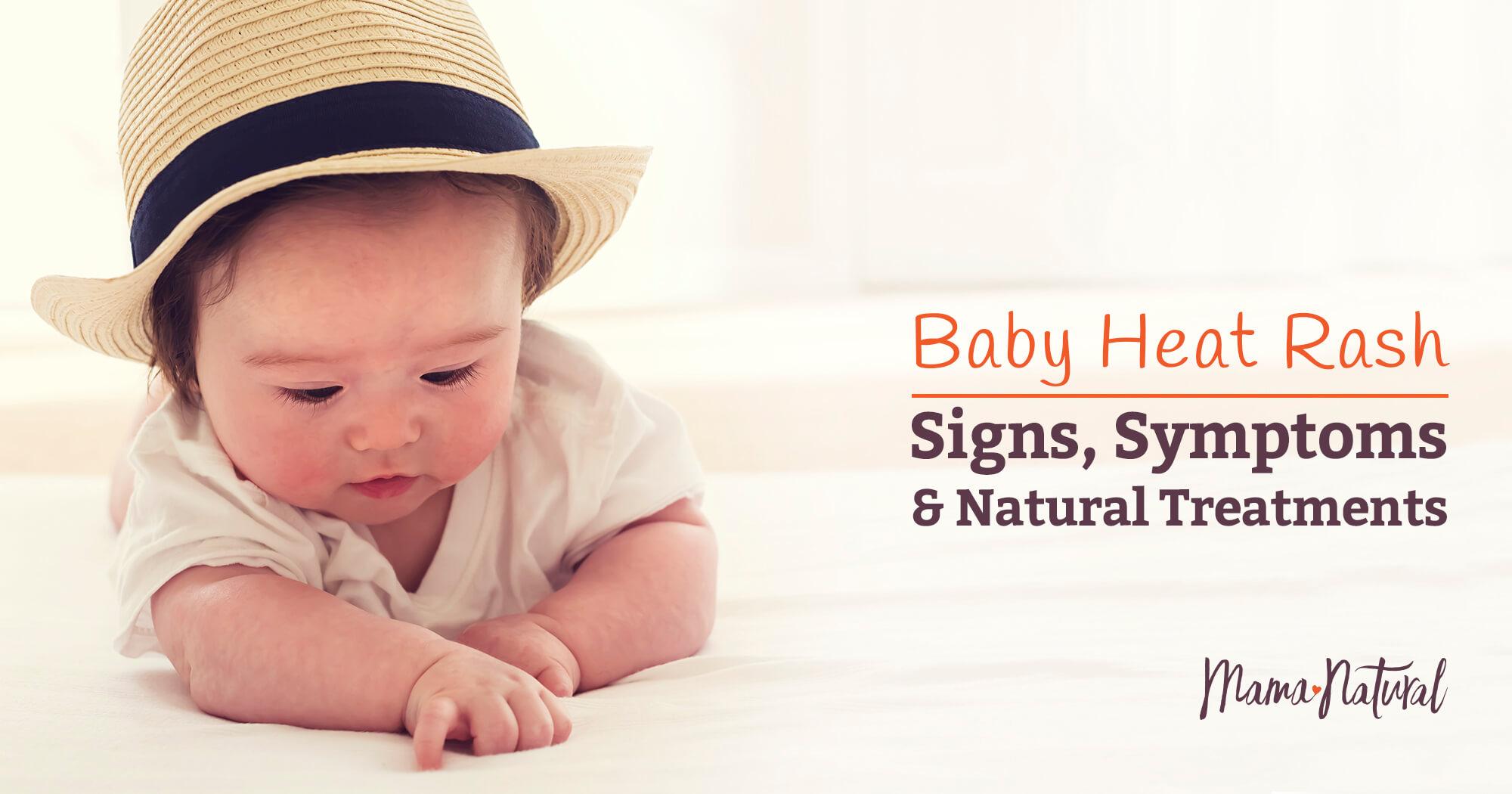 Treating newborn facial rash something