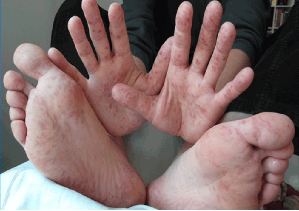 Coxsackie Blisters on Hands and Feet