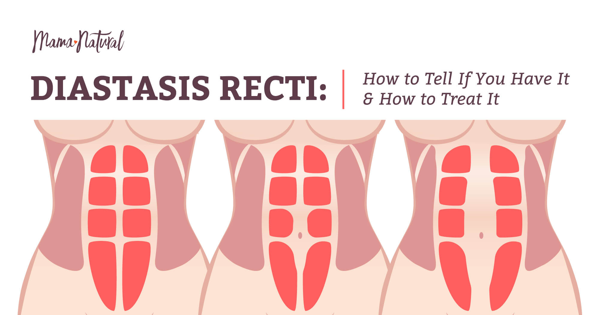 e9d1f9638e9 Diastasis Recti  Do You Have It  Plus How to Treat It