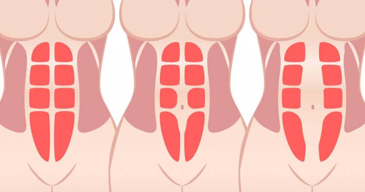 It's normal for bellies to appear stretched and saggy after pregnancy, but having these symptoms for many months could indicate a problem called diastasis recti. Find out what causes abs to separate during pregnancy, natural and safe ways to correct the problem, and what diastasis recti means for future pregnancies.