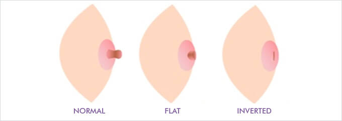 What is an inverted nipple? Difference between inverted, flat, and regular nipples.