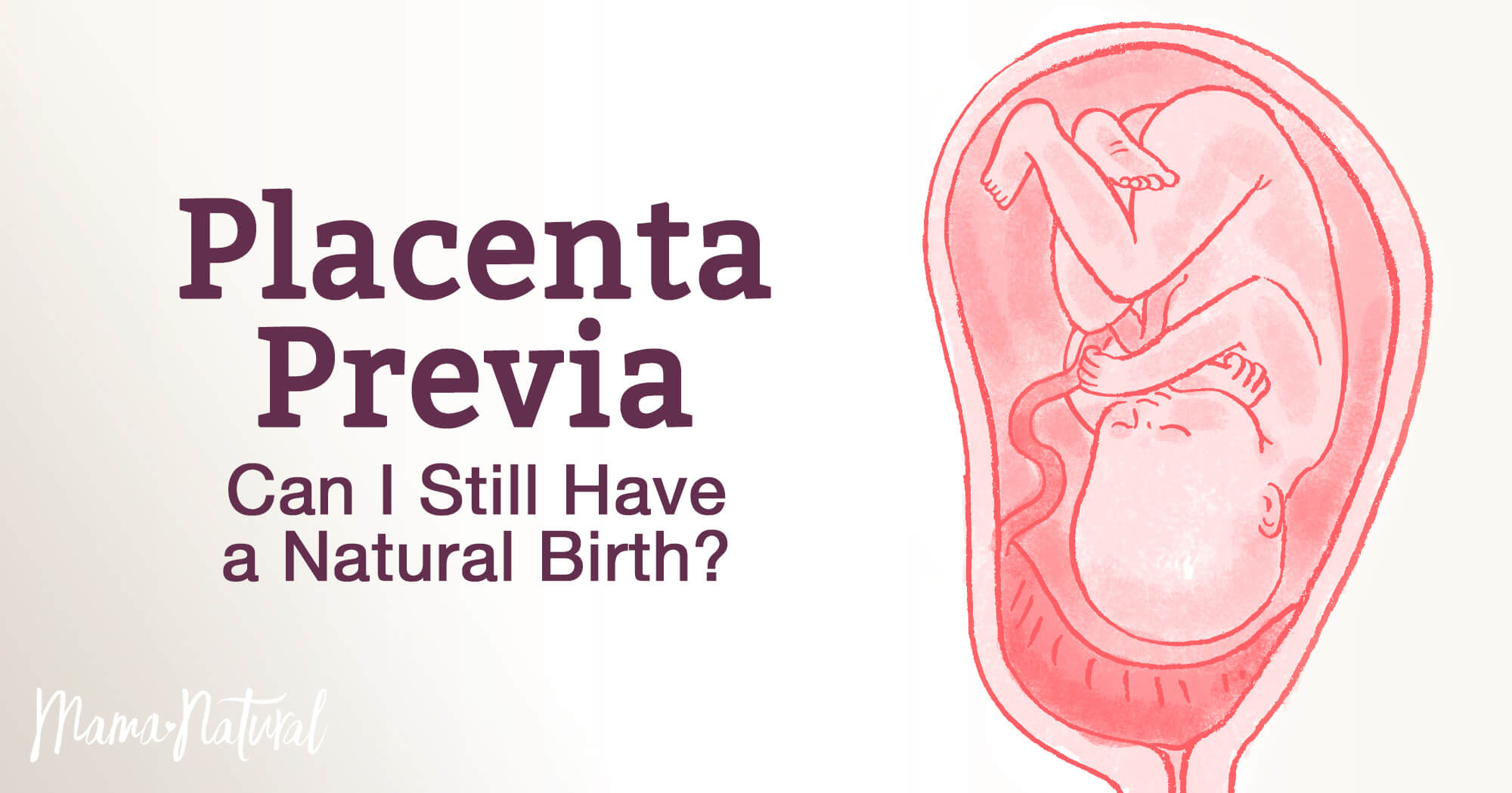 Placenta Previa: Can I Still Have a Natural Birth? | Mama