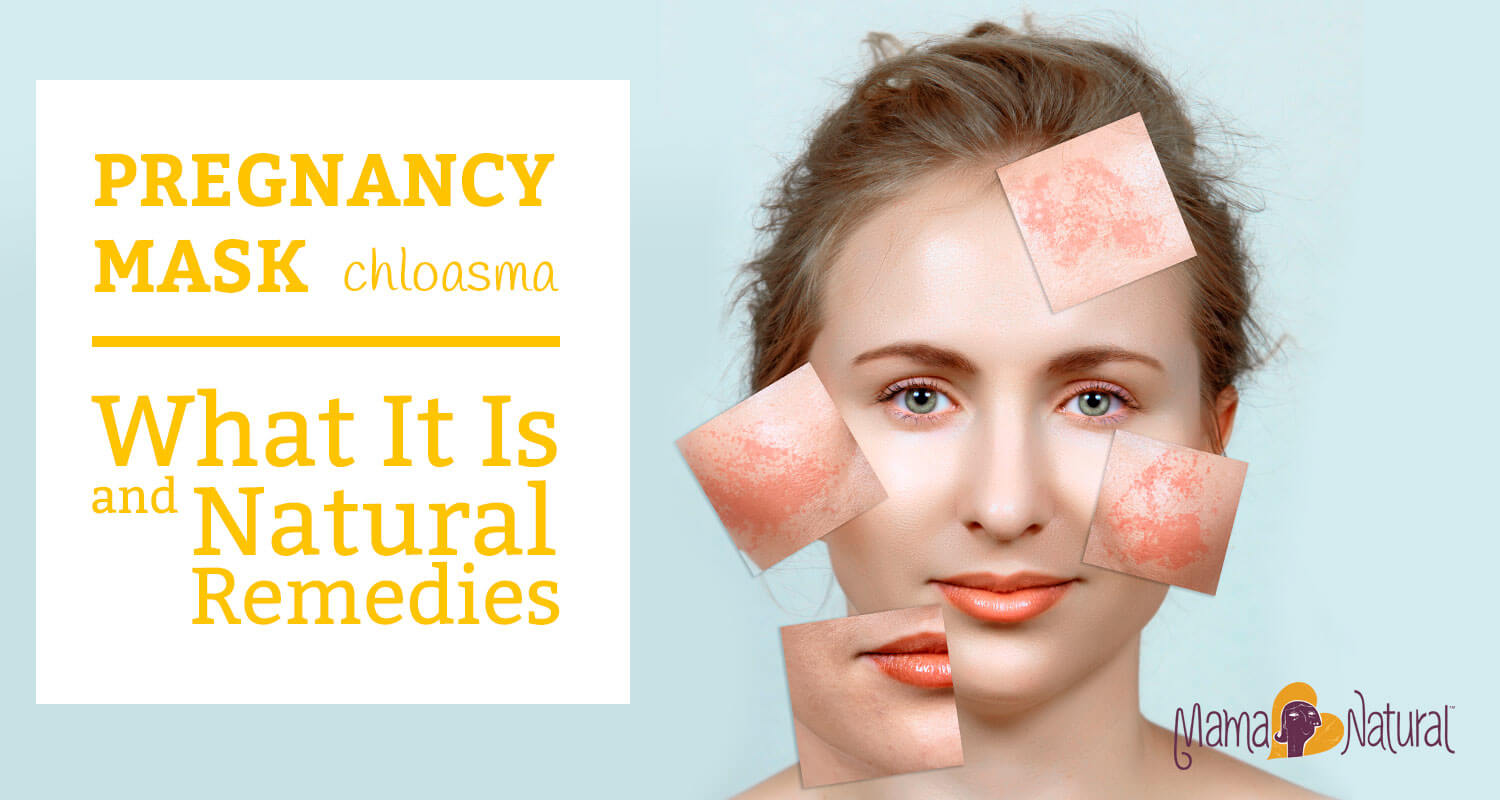 Pregnancy Mask (Chloasma): What It Is & Natural Remedies