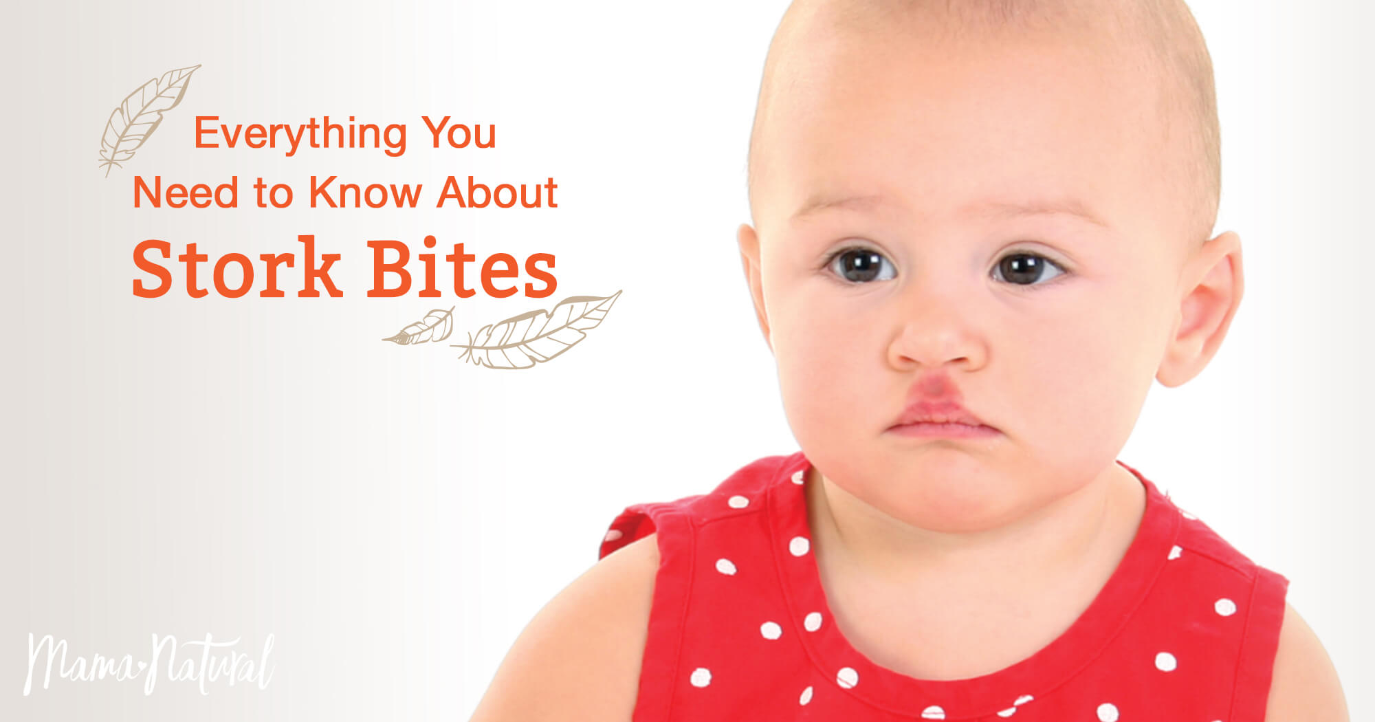 Stork Bite: What You Need to Know About This Birthmark | Mama Natural