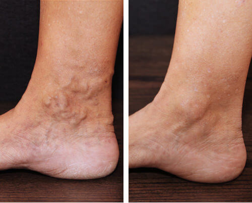 Varicose Veins What Are They (and What You Can Do About Them) - dallasveinspecialists