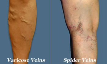 Varicose Veins What Are They (and What You Can Do About Them) - spider varicose