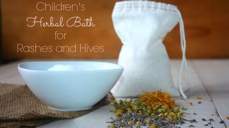 Does your child have a rash or hives? Redness, inflammation, pain, itching? Here's how to relieve the symptoms naturally with an easy herbal bath.