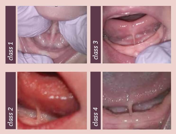 Tongue Tie - Classifications